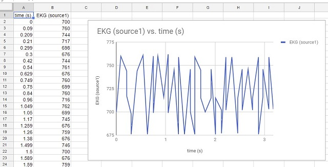 View of EKG data in spreadsheet